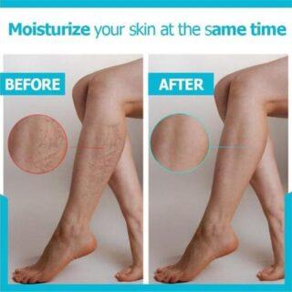 Varicose Veins Miracle Cream 3
